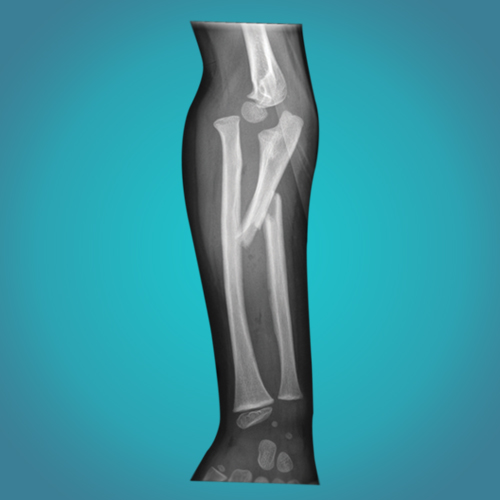 Post Fracture Rehabilitation Treatment in Ahmedabad