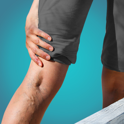 Varicose vein pain treatment in ashram road